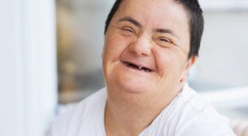 An elderly person with down syndrome.